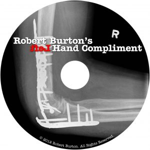 Winnipeg Xray of Robert Burton's Shattered elbow